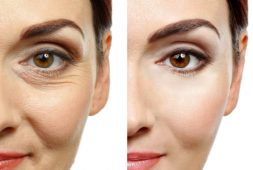 is-botox-the-best-way-to-have-wrinkles-free-face