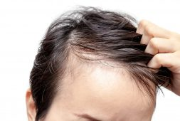 why-your-hair-scalp-hurts-sometimes