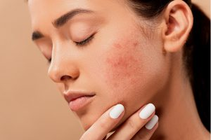 Dry Skin Issues